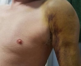 Edgewater Gay Man Viciously Attacked On Bryn Mawr, Suspect Used Anti-Gay Slurs